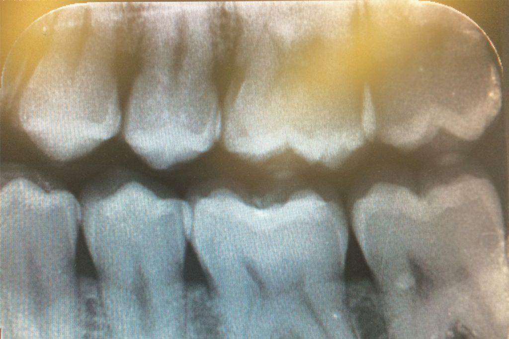 foto tanden WEB